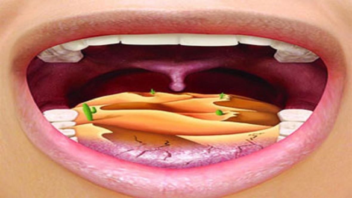 راه های درمان خشکی دهان