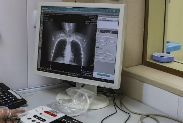 آیا فیبروز ریه در بهبودیافتگان کرونا درمان می گردد؟